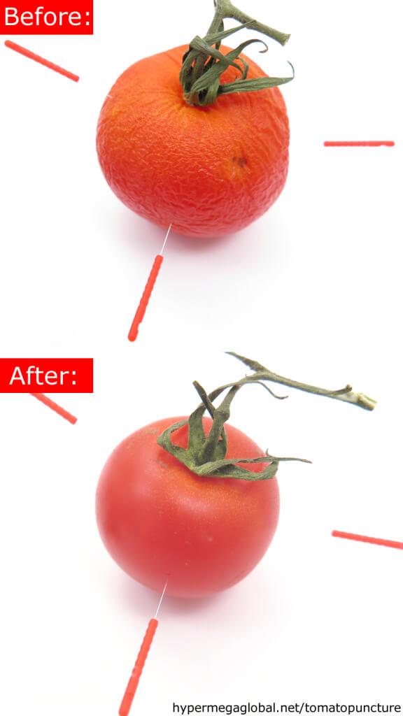 tomatopuncture